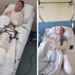 Gmina Przechlewo:  | Trwa zbiórka pieniędzy na protezy dla dwóch nastolatków z Sąpolna w gminie Przechlewo
