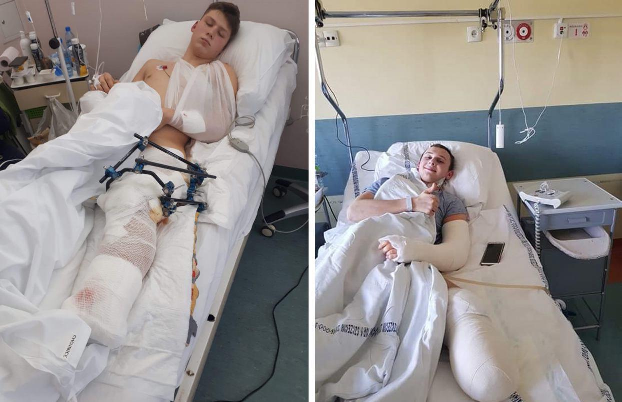 Trwa zbiórka pieniędzy na protezy dla dwóch nastolatków z Sąpolna w gminie Przechlewo