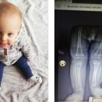 | Piotruś ma 15 miesięcy. Potrzebne są pieniądze na dwie operacje, zanim skończy 2 lata